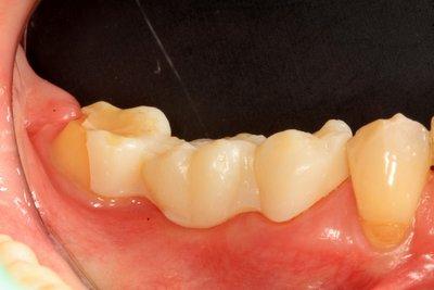 Lava™ Premium - All Ceramic Zirconia Crowns and Bridges | 3M Dental | 3M