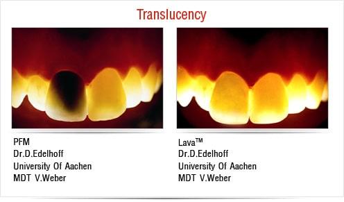 Clinical Cases Dental Restorations Cases Dental Crown